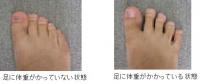 足の荷重比較.jpg